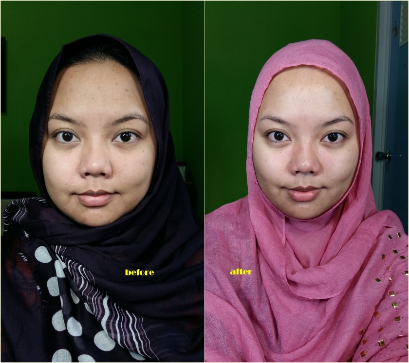 before after probio c